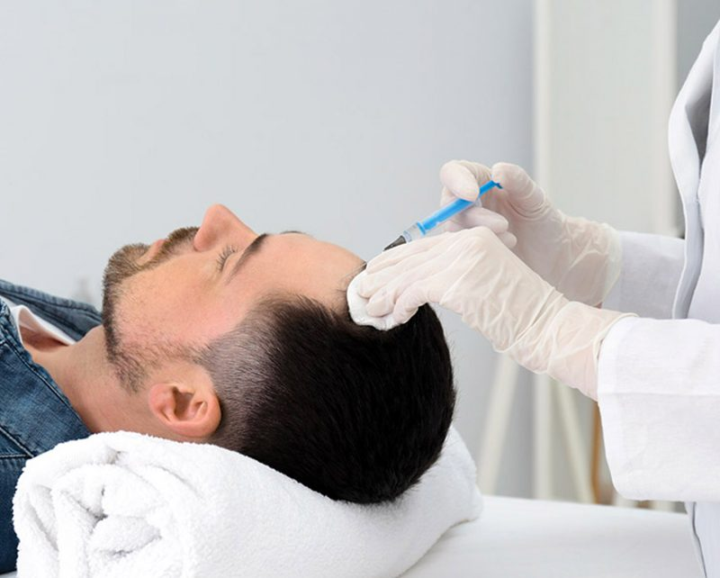 PRP hair restoration on man
