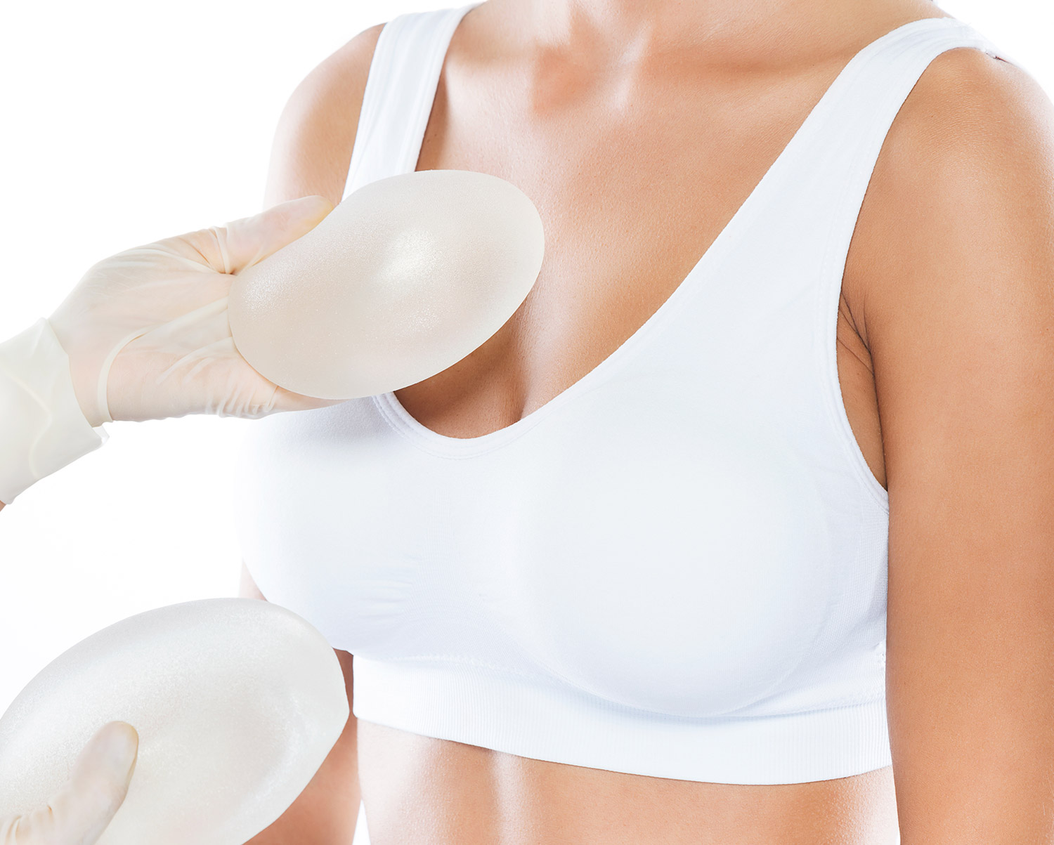 breast implant removal example image