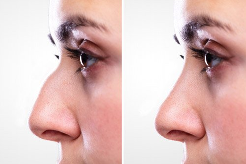 rhinoplasty on woman before and after