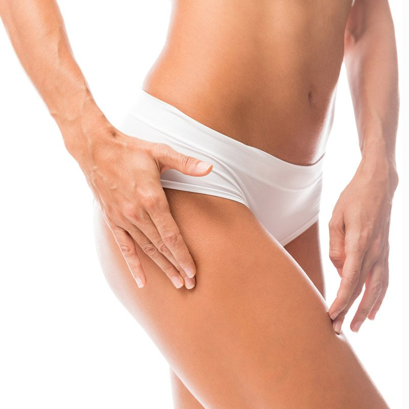 Thigh lift, body contouring
