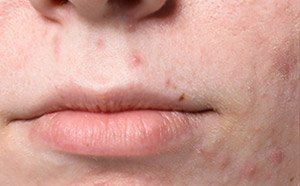 chemical peel on face before picture