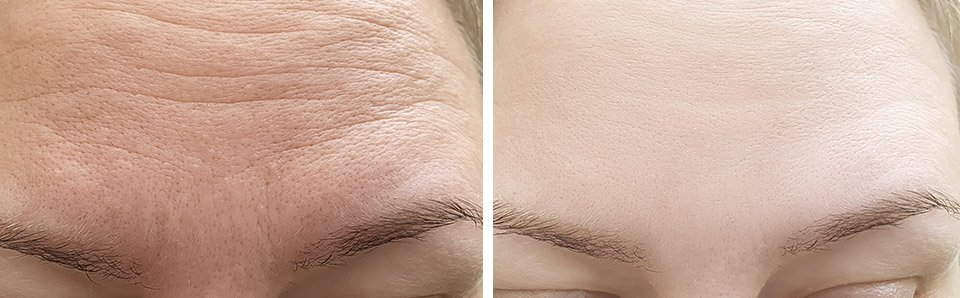 wrinkle relaxers on woman's forehead before and after