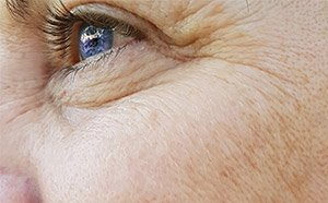 dermal fillers around eyes before picture
