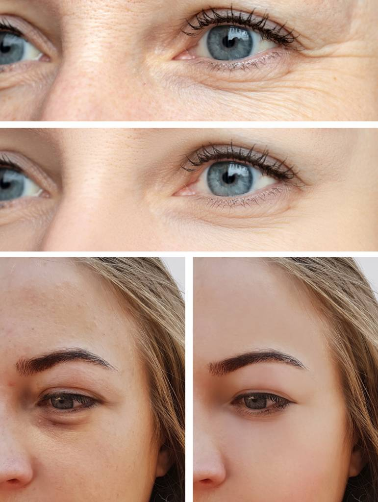 eye rejuvenation on women before and after images