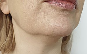 thread facelift before picture