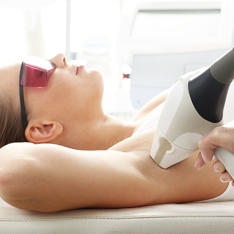 laser hair removal on woman's body