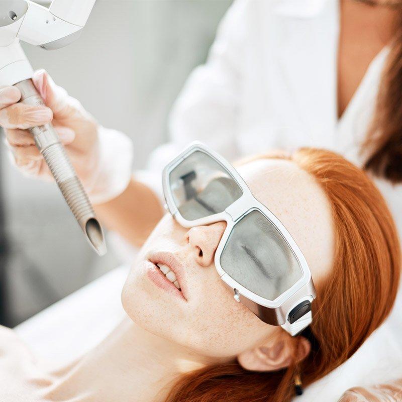 laser skin resurfacing example image