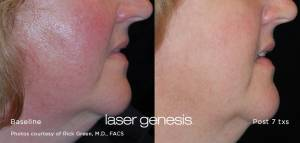 laser skin resurfacing on woman before and after