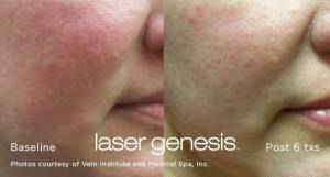laser skin resurfacing on woman's face before and after