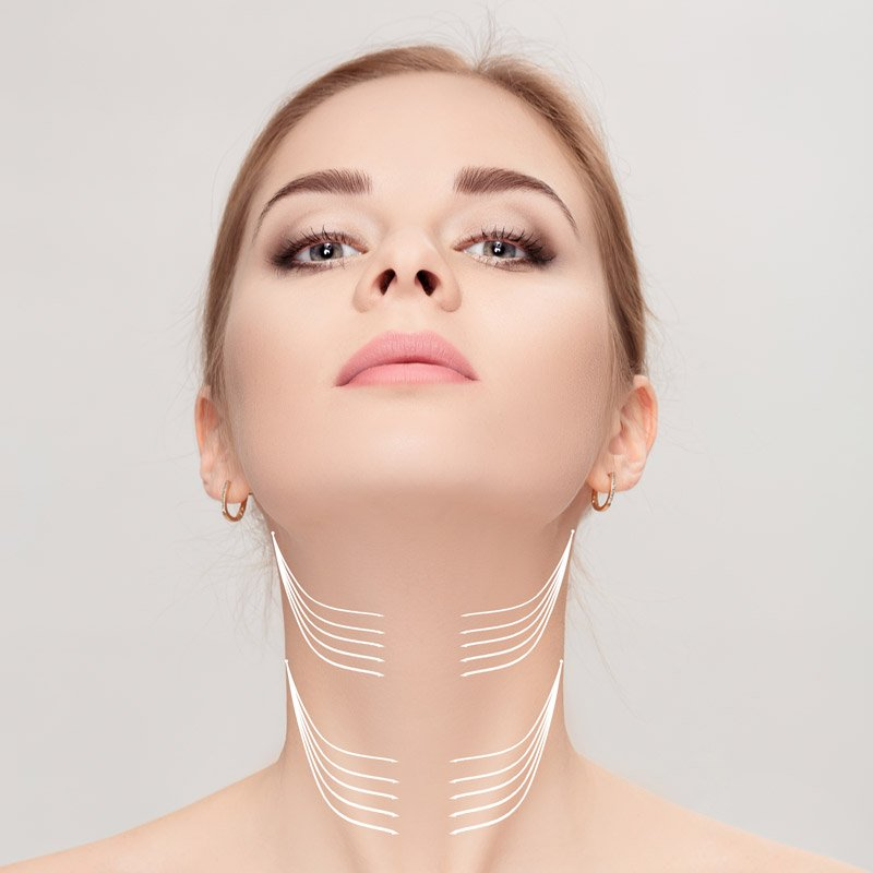 neck rejuvenation, neck lift med spa