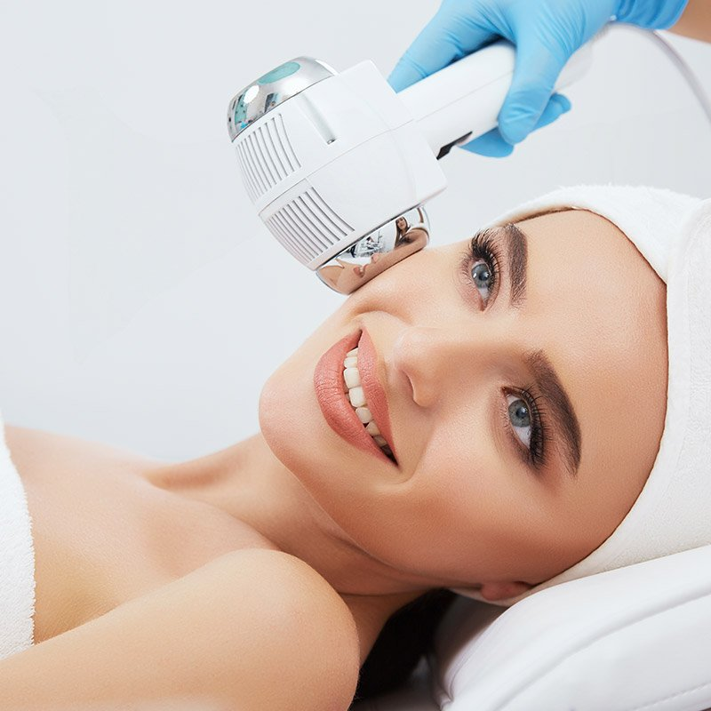 photofacials for woman