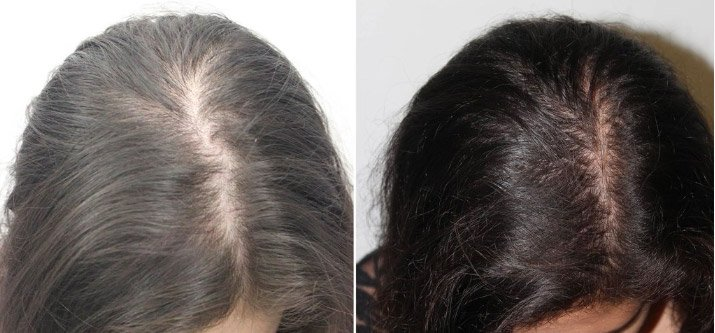 PRP hair restoration before and after for woman