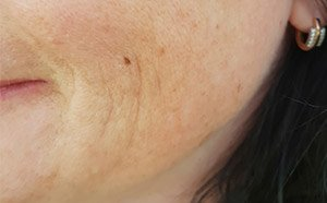 skin tightening on face before picture