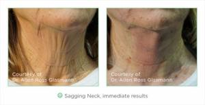 thread facelift on woman's neck before and after