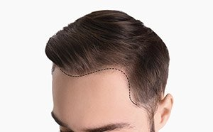 hair transplant on man after picture
