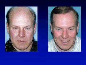 hair transplant older man before and after
