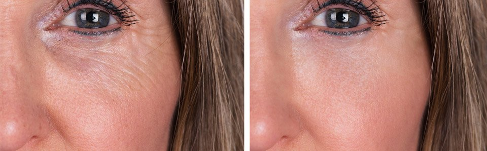 wrinkle relaxers around eyes on woman before and after
